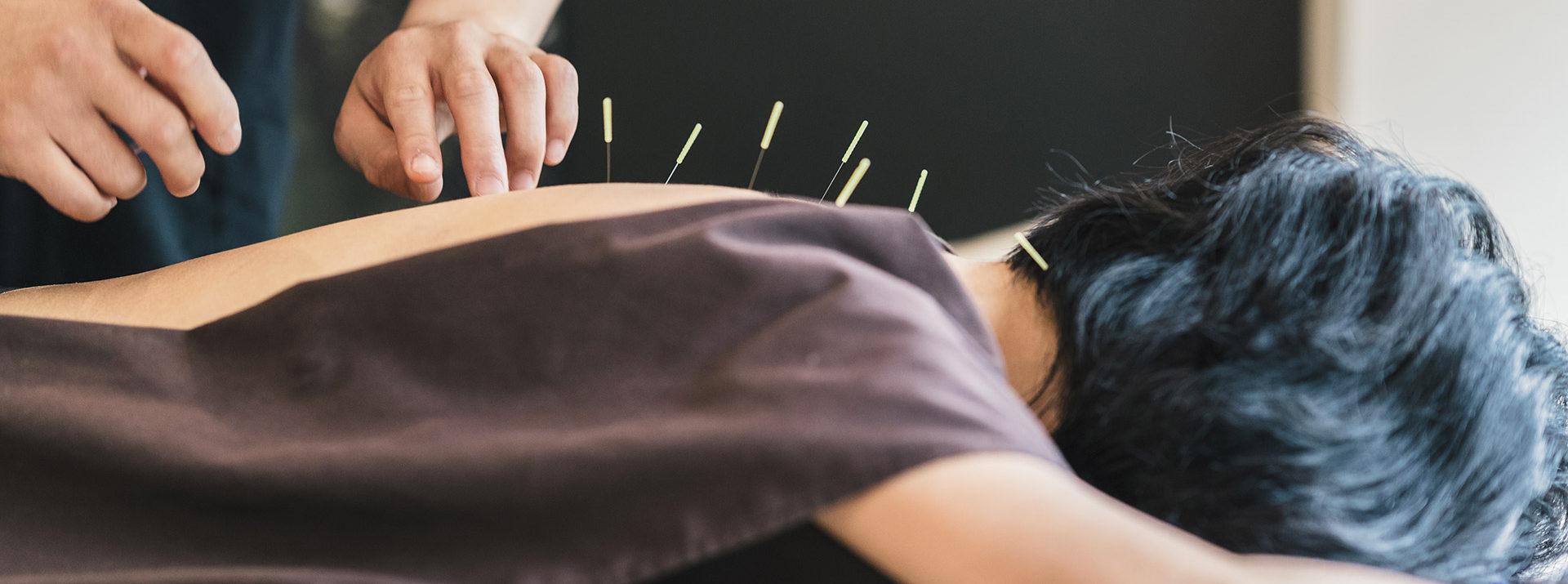 La terapia con agopuntura NON prevede l'introduzione di alcun farmaco o sostanza chimica.
